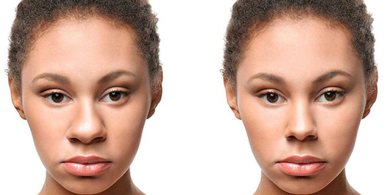 عمل بینی گوشتی قبل و بعد