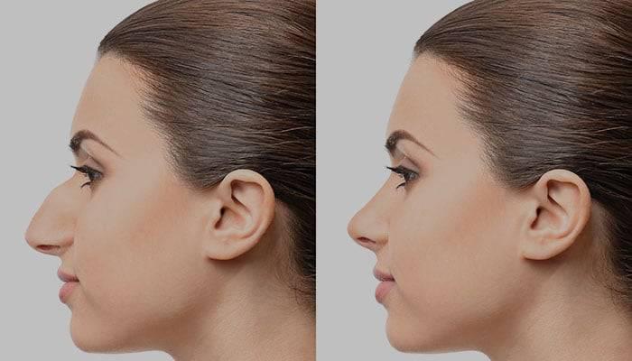 عمل زیبایی بینی قبل و بعد