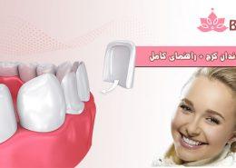 کامپوزیت دندان در کرج