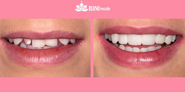 کامپوزیت دندان before after