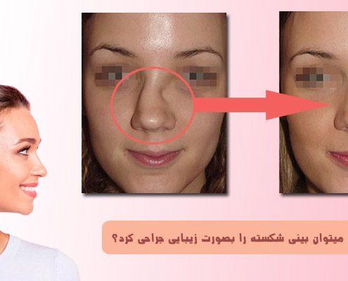 جراحی زیبایی بینی شکسته