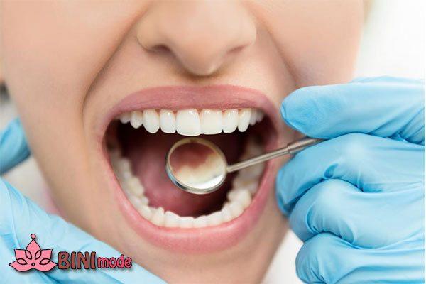برای پوسیدگی دندان چه زمانی به پزشک مراجعه کنیم ؟