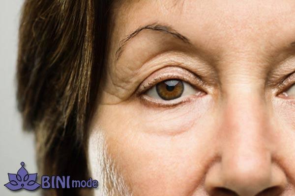 تزریق بوتاکس در افراد دارای پلک افتاده