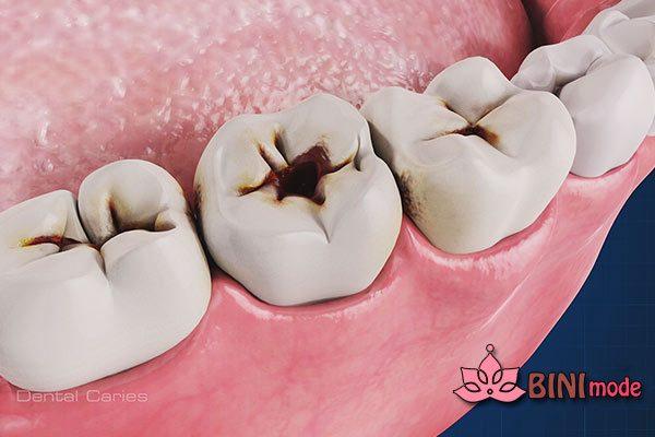 علائم پوسیدگی دندان ها را بدانید !